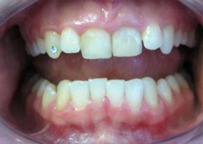 Schiefstand der Zähne