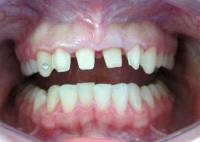 präparierte Zähne zur Aufnahme der Kronen, bzw. Veneers