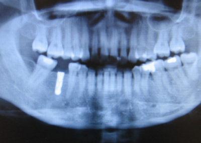 Röntgenkontrolle nach durchgeführter Implantat-Operation